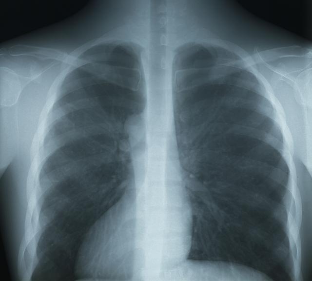 胸部の医療用X線フィルム(大角サイズ)